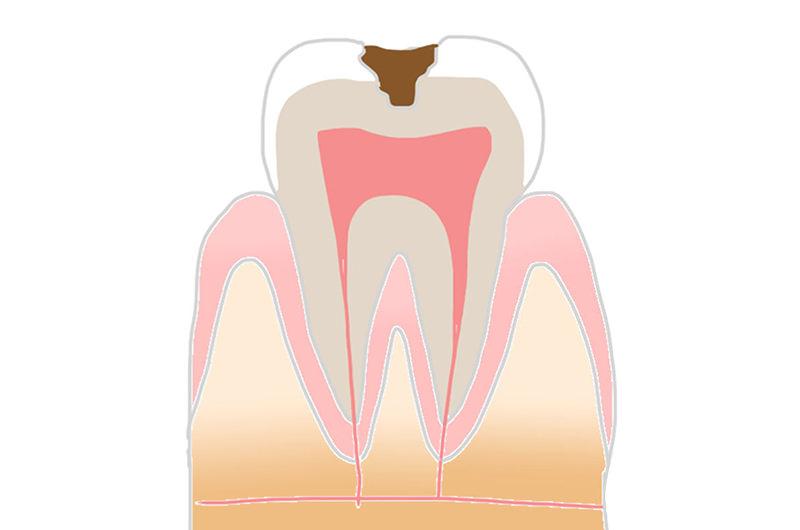 C2(象牙質の虫歯)