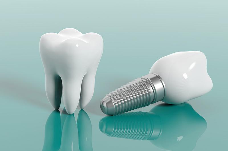 人工歯を装着