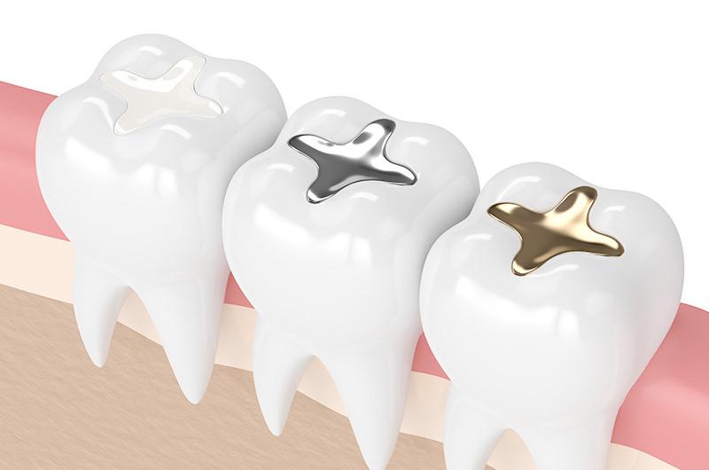 銀歯を白い歯に換えませんか?