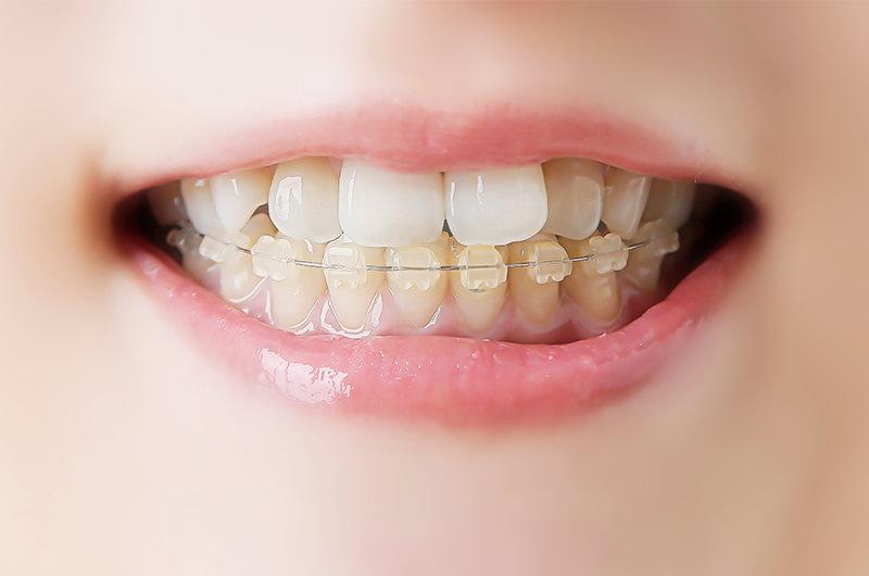 歯並びでお困りではありませんか?