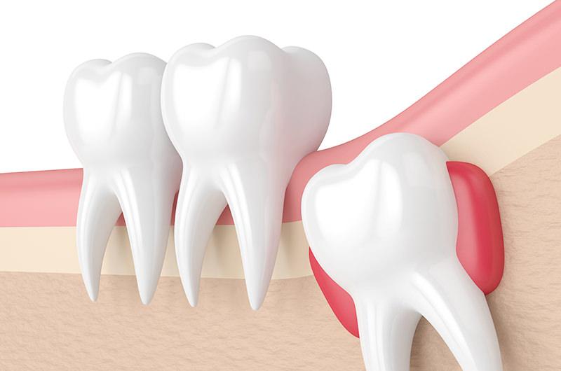 抜歯・できもの・顎関節症などを治療