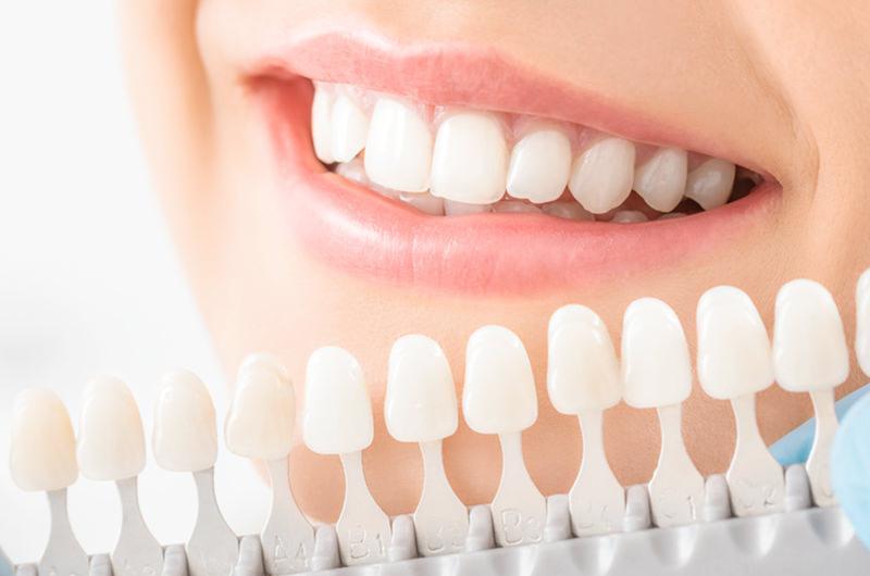 歯の黄ばみ・変色を白くします